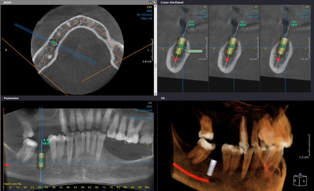 Implant planning CRANEX_3D_Nerve_canal_marking_for_implant_planning